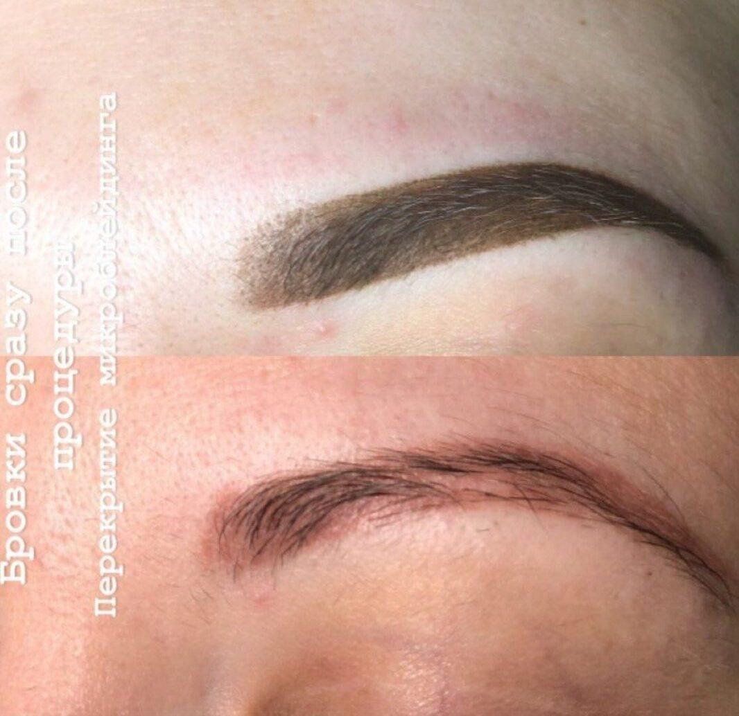 результаты джелкинга до и после макияжа